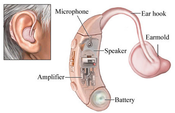 Use of Hearing Aid